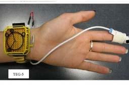 ساخت تراشهای برای تبدیل حرارت بدن انسان به انرژی الکتریسیته